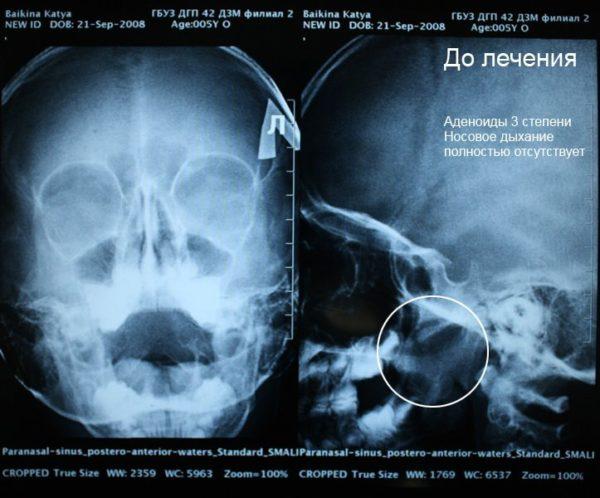 До лечения аденоидов - рентген снимок