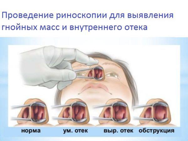 Риноскопия в диагностике аденоидов
