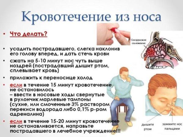 От чего может пойти кровь из носа во время сна thumbnail