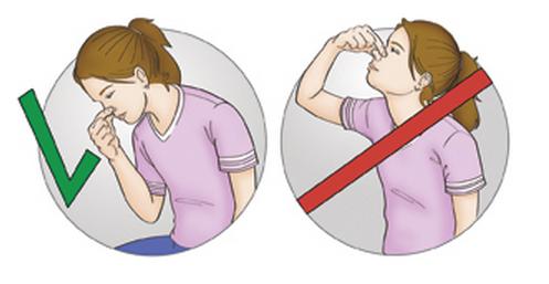 Как правильно держать голову при кровотечениях