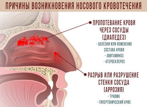 Основные причины кровотечений