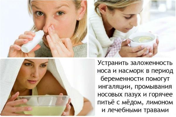 Как лечить насморк беременным - методы