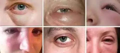 Проявления этмоидита у взрослых