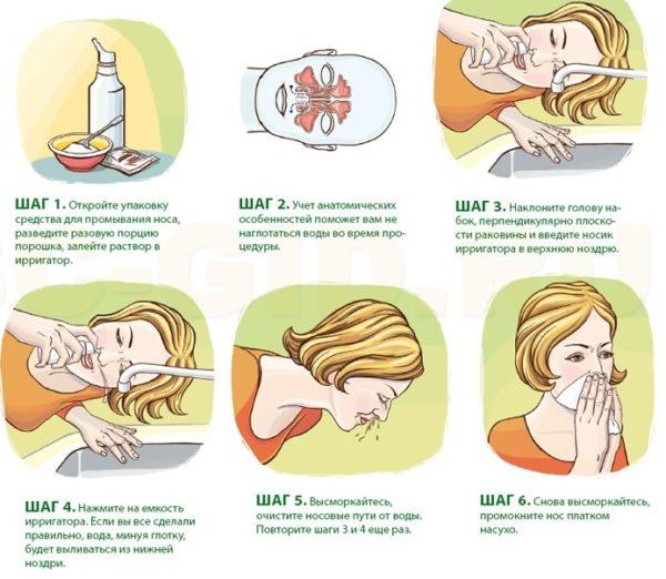 Как делать промывание носа