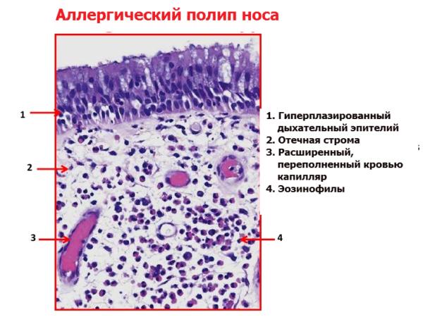 Полип аллергического происхождения