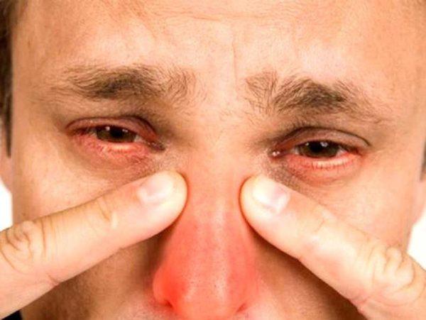 Боль при гайморите снимают ингаляции