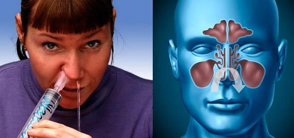 Промывание носа - схема
