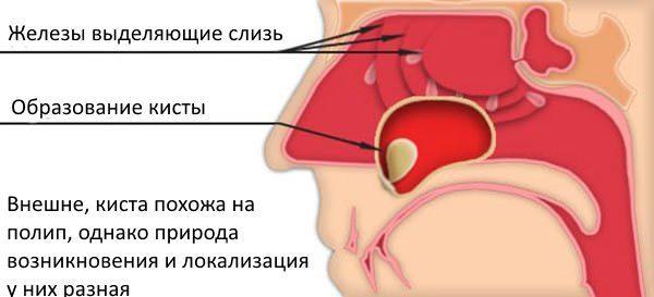 Образование кисты в носу