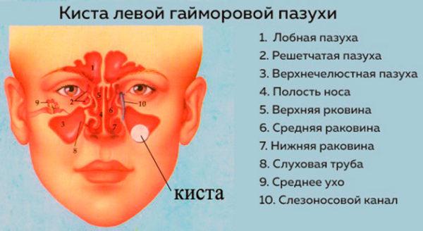 Киста в носу