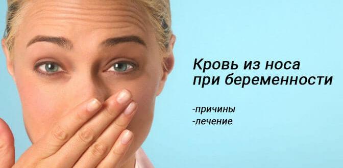 Кровотечение из носа у беременных