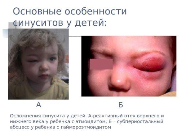 Осложнения синусита
