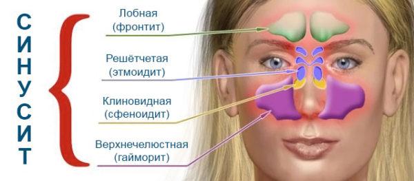 Виды синуситов в зависимости от пазух