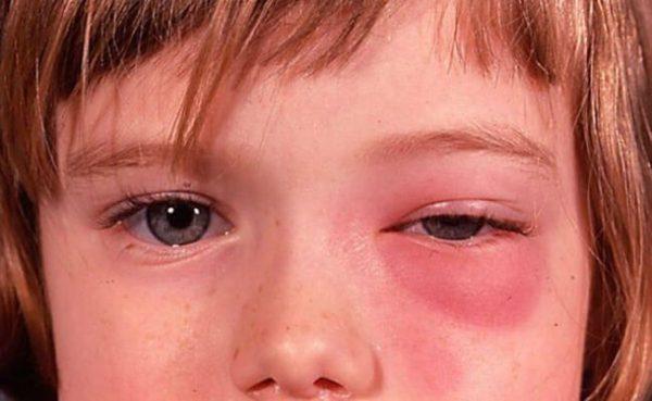 Проявления острого этмоидита