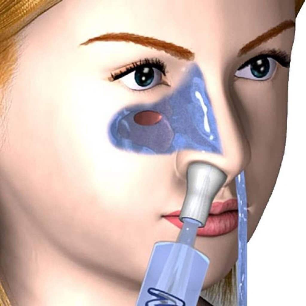 Кукушка при гайморите – процедура промывания носа