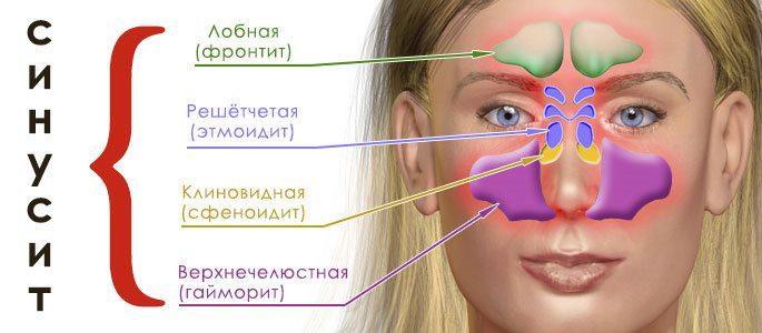 Острые синуситы